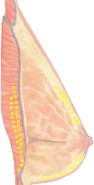 rindade-suurendamine-rasvasustidega-pilt-2